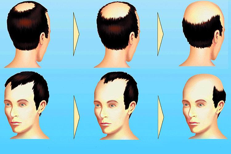 Die Illustration erklärt das Voranschreiten von Haarausfall an einem männlichen Beispiel.