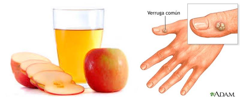Eliminas-Esas-Pequeñas-Verrugas-Con-Este-Efectivo-Remedio-Casero