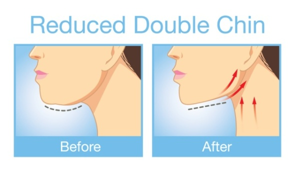How-to-Get-Rid-of-That-Unwanted-Double-Chin-With-One-Simple-Exercise