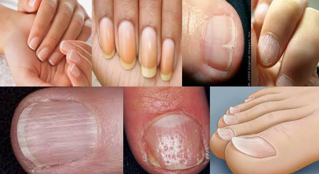 Signo de enfermedades atraves de las uñas