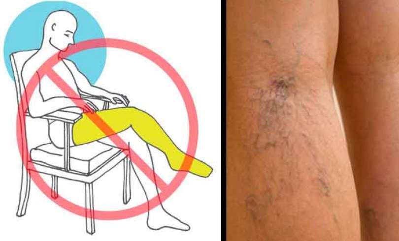 cruzar-piernas-malo-para-salud-mfr3c7kt1bb4ab2g4m5j49bzb5bf4f2ia72ow4x9d0