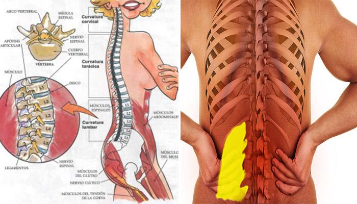 Dolor-espalda-grave