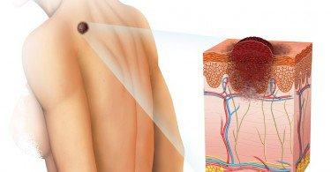 Tipos-de-cáncer-en-la-piel-y-cómo-detectarlos-a-tiempo-375x195