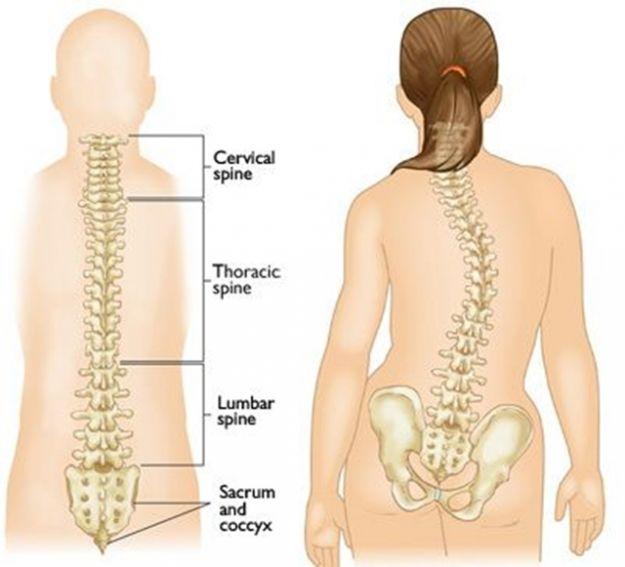 escoliosis-espalda
