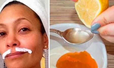 remedio-para-eliminar-el-vello-facial-mf804k5ciqlb6kshb9jpdq28t9wnmpdckakxhgnfdw (1)