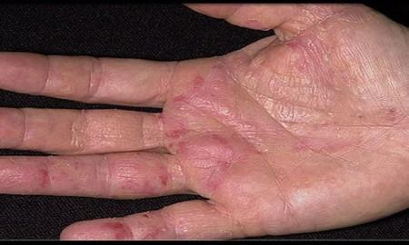 Los-primeros-síntomas-de-cáncer-aparecen-en-las-manos