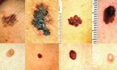 18-recognize-skin-cancer-fb