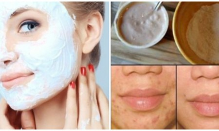 This-Face-Mask-Magically-Removes-StainsAcne-Scars-and-Wrinkles-After-Second-Use-768x379