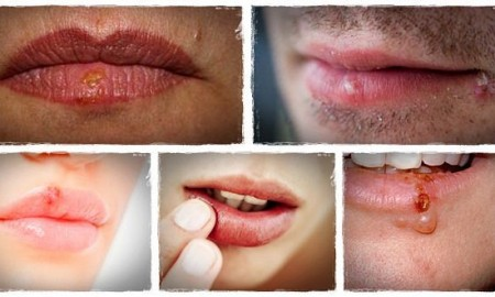 How-to-Get-Rid-of-Herpes