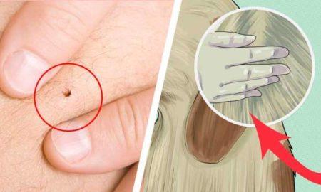 elimina-garrapatas-pulgas-mm5sp1qdu7yoa5aeyex28yhqc9oebowqzcby8j9h2c
