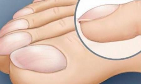 sintomas-uñas-