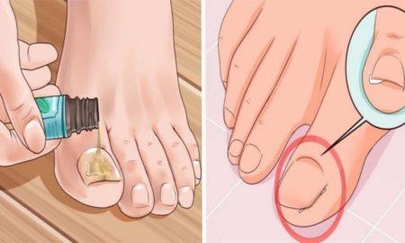 04-remove-ingrown-toenails-fb-918x482