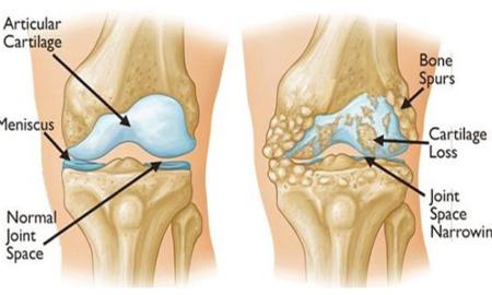dolor-de-rodilla-nueva