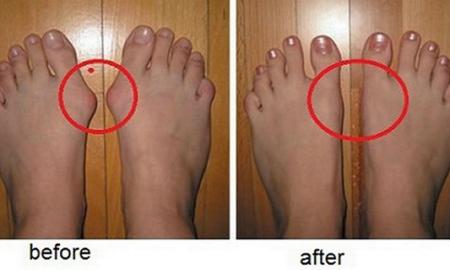 feet_bunions
