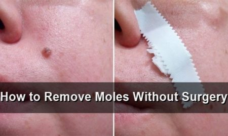 remove-moles-in-8-natural-ways-640x379