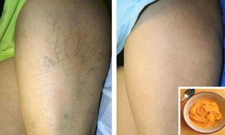 varicose-veins-natural-trea