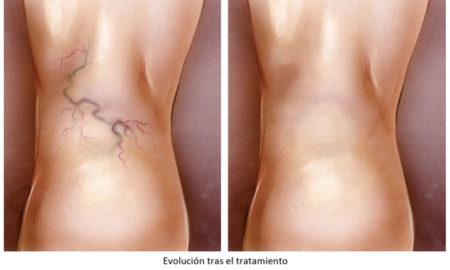 arañas-vasculares-clínicalucq
