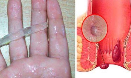hemorroides-rmedio-mt0cbak32lttzxefgnuxpmrrhd79f82ojmdjrcg144
