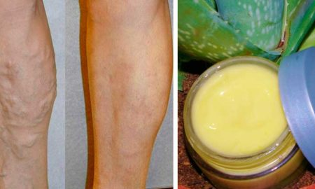 varices-remedio-natural