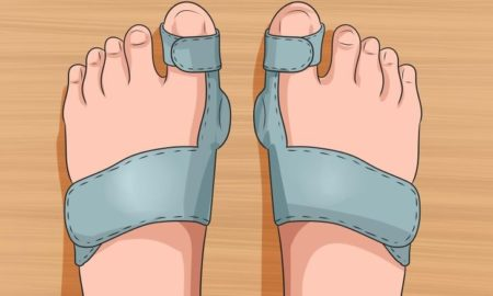 728px-Get-Rid-of-Bunions-Step-8-Version-2