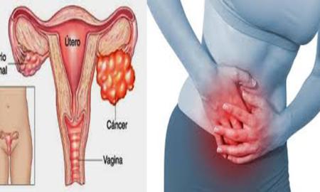 canceruterino