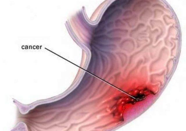 como-prevenir-el-cancer-gastrico-e1473465188316