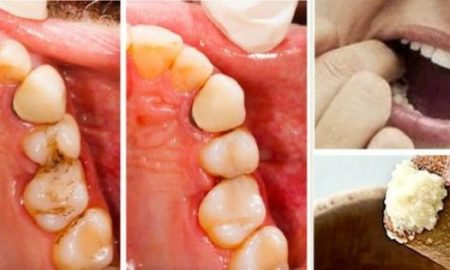 heal-tooth-cavities-yourself-and-relieve-pain-quickly-at-home-620x315