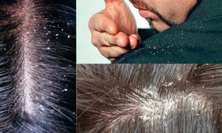 caspa-en-los-cabellos