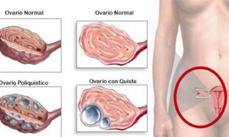 como-limpiar-y-eliminar-quistes-de-ovario-y-utero-090527779