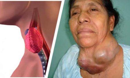 enfermedad-tiroides-768x414