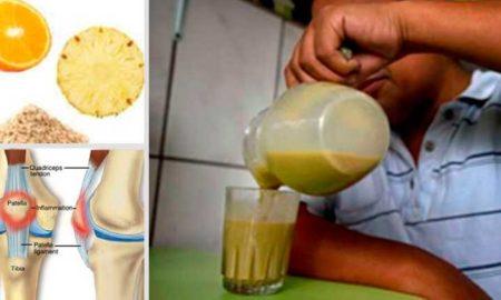 dolor-de-rodilla-4