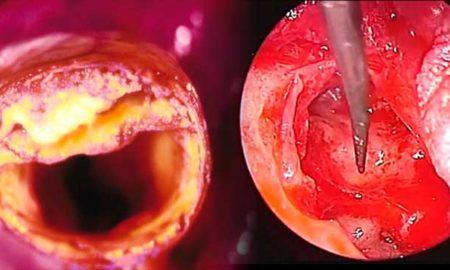 limpiar-arterias