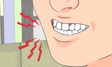 dientes-1
