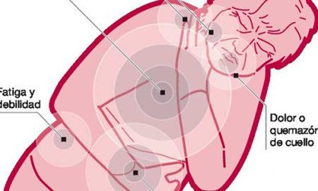 sintomas-infarto-mujer