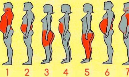 tipos-de-obesidad-500x280