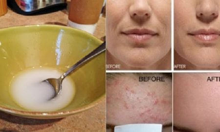 Say-Goodbye-to-Wrinkles-and-Sagging-Facial-Skin-After-Washing-It-With-Coconut-Oil-and-Baking-Soda