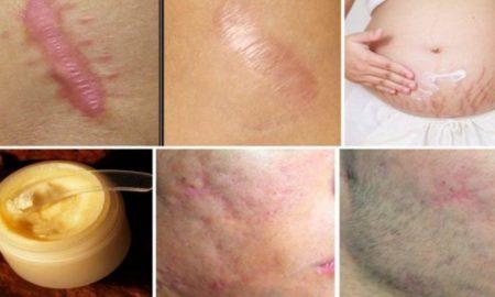 cicatriz-portada-735x400